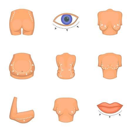 Type van liposuction geplaatste pictogrammen, beeldverhaalstijl. Stock Illustratie