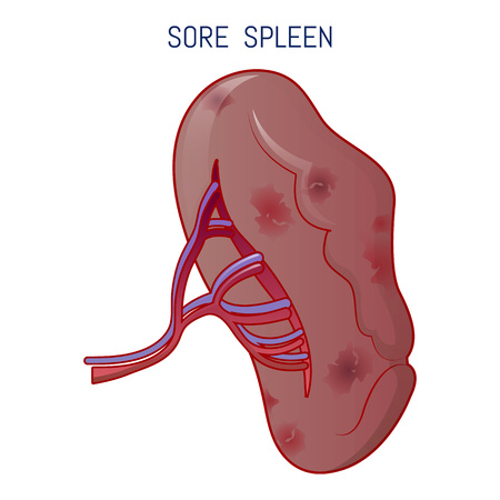 Sore spleen icon, cartoon style