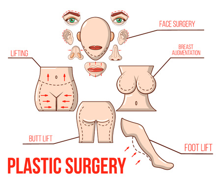 Plastic surgery concept banner. Cartoon banner of plastic surgery vector concept for web, giftcard and postcard
