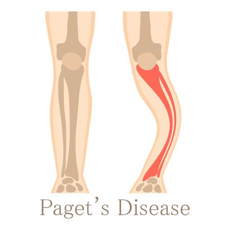 Paget disease icon, cartoon style Stock Photo