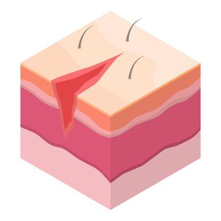 Icône de suture chirurgicale ouverte. Isométrique de l'icône vecteur de suture chirurgicale ouverte pour la conception web isolé sur fond blanc Vecteurs