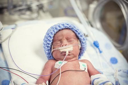 Pasgeboren premature baby op de intensive care van de NICU