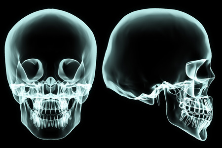 X-ray front and side skull in brightness blue with black background