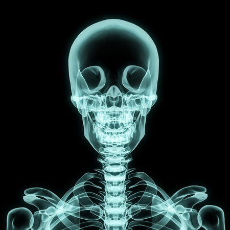 X-ray upper chest included skull in brightness blue with black background photo