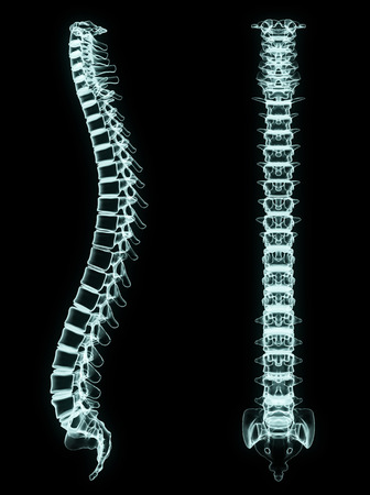 X-ray spine front and side in brightness blue with black background photo
