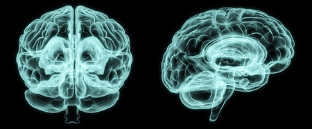 X-ray front and side brain in brightness blue on black background