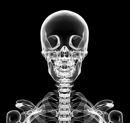 X-ray upper chest included skull in brightness white with black background photo