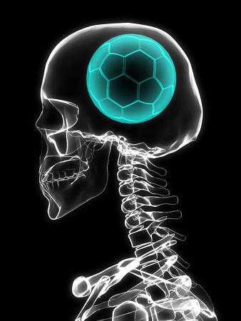 banni�re football: Radiographie du cr�ne avec un ballon de football au lieu de cerveau.