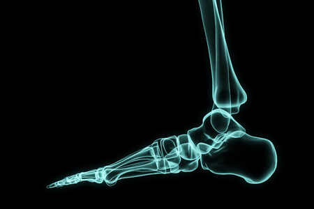 foot care: Xray foot in brightness blue with black background.