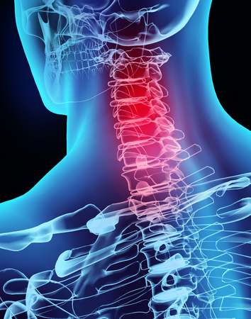 3D illustration x-ray neck painful, medical concept. Stockfoto