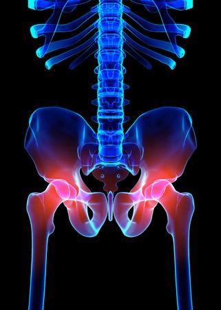 man back pain: 3D illustration, hip painful skeleton x-ray, medical concept.