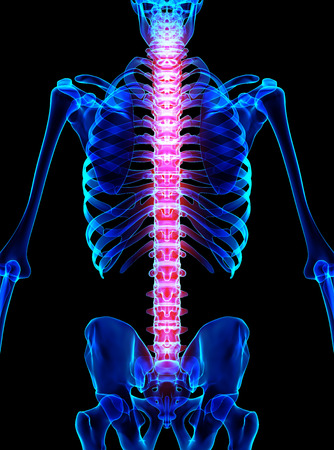 3D illustration, spine painful skeleton x-ray, medical concept. Stock Photo