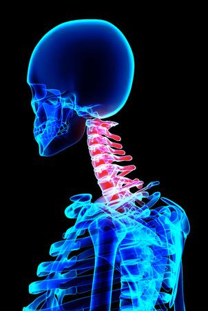 backache: 3D illustration, neck painful skeleton x-ray, medical concept.