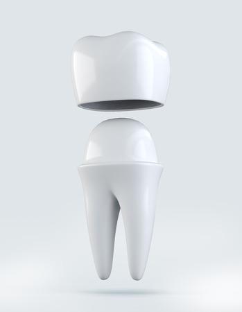 Ilustración 3D de la corona del diente en blanco Concepto, dental.