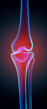 strain: Knee painful - skeleton x-ray, 3D Illustration medical concept. Stock Photo