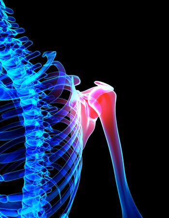 clavicle: 3D illustration, shoulder painful skeleton x-ray, medical concept.