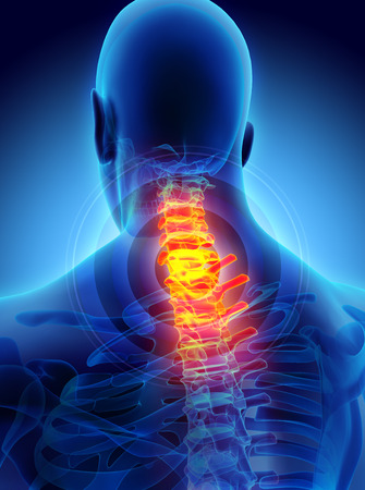 3D illustration, neck painful - cervica spine skeleton x-ray, medical concept.