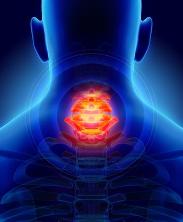 3D illustration, neck painful - cervica spine skeleton x-ray, medical concept.