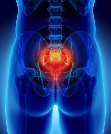 coccyx pain: 3D illustration medical concept of Sacrum painful. Stock Photo