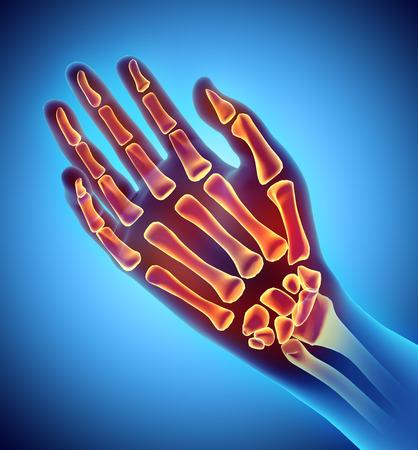 wrist joint: 3D illustration of Hand Skeleton - Part of Human Skeleton.