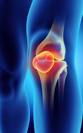 osteoarthritis: 3D illustration of Patella - Part of Human Skeleton. Stock Photo