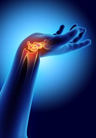 wrist joint: 3D illustration of Carpal - Part of Human Skeleton. Stock Photo