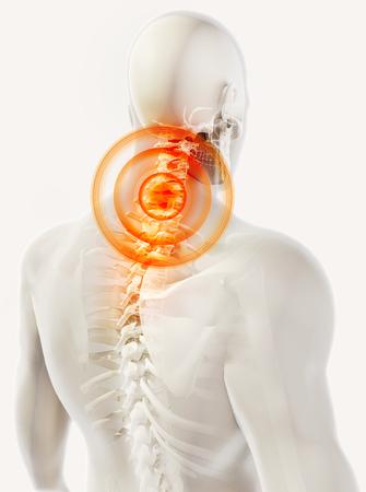 man back pain: 3D illustration, neck painful skeleton x-ray, medical concept.
