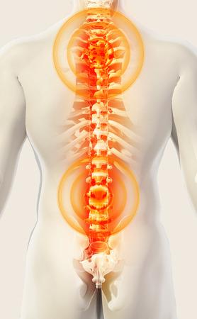 sacral: 3D Illustration of sacral and cervical painful, medical concept.