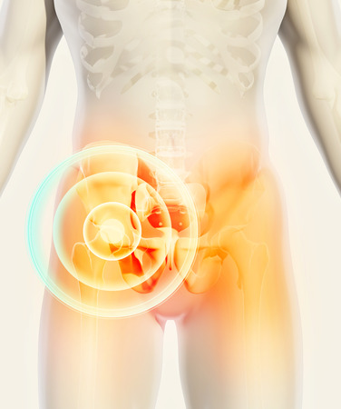 3D illustration, hip painful skeleton x-ray, medical concept.