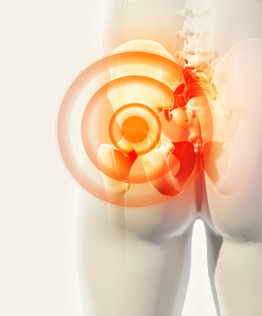 ilium: 3D illustration, hip painful skeleton x-ray, medical concept.