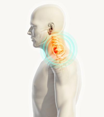 scoliosis: 3D illustration, neck painful - cervica spine skeleton x-ray, medical concept.