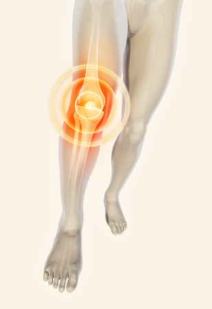osteoarthritis: Knee painful - skeleton x-ray, 3D Illustration medical concept. Stock Photo