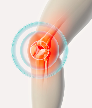 Rodilla dolorosa - esqueleto de rayos x, concepto médico Ilustración 3D. Foto de archivo - 69057349