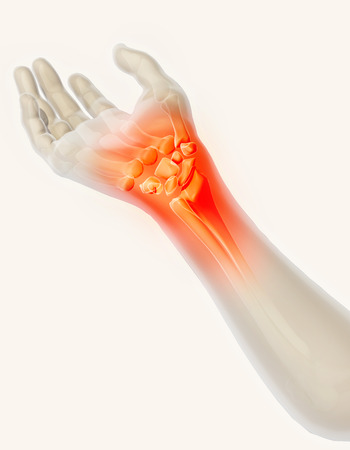 osteoarthritis: Wrist painful - skeleton x-ray, 3D Illustration medical concept.