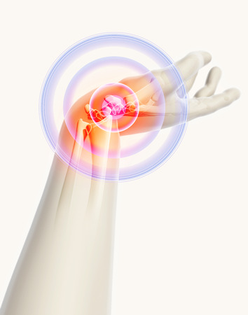 carpal tunnel: Wrist painful - skeleton x-ray, 3D Illustration medical concept.
