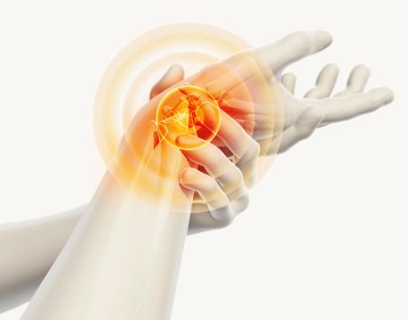 고통스러운 손목 - 골격 엑스레이, 3D 그림 의료 개념.