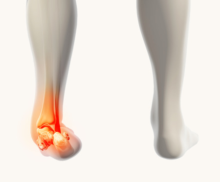 sprain: Ankle painful - skeleton x-ray, 3D Illustration medical concept.