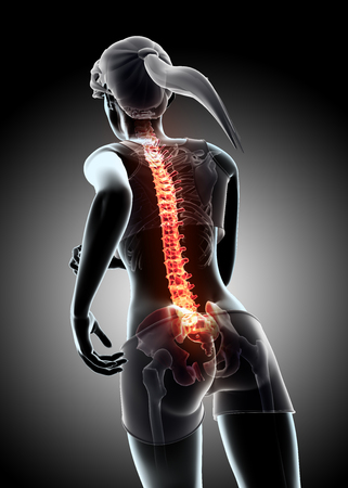 3d illustration - Female run and X-ray Spine position, medical concept. Stock Photo