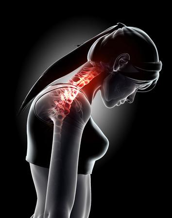 Ilustración 3D, el cuello dolorosa - cervica columna vertebral esqueleto de rayos x, concepto médico.