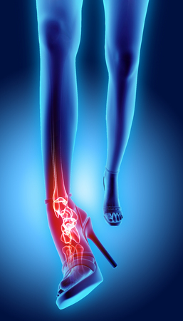 high: Ankle painful - skeleton x-ray ankle high heeled painful, 3D Illustration medical concept. Stock Photo