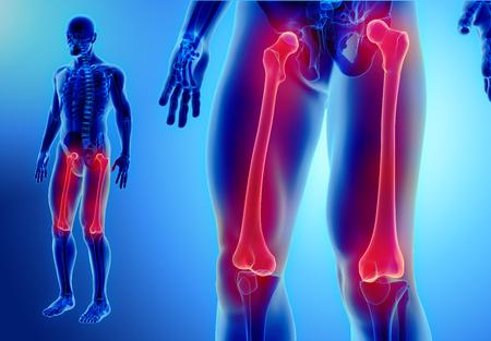 hip fracture: 3D illustration of Femur - Part of Human Skeleton. Stock Photo