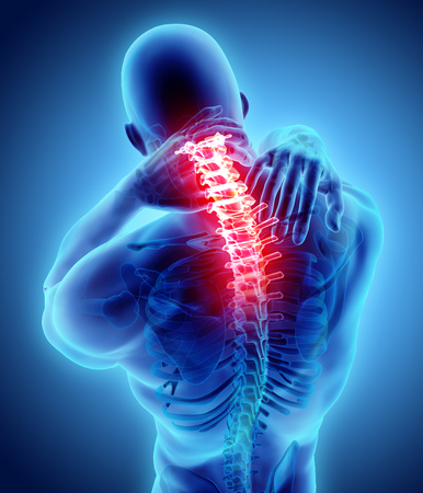 Illustrazione 3D, dolore al collo doloroso - scheletro cervicale, raggi X, concetto medico.
