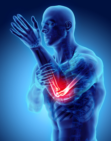 Illustration 3D de blessure au coude humain, concept médical. Banque d'images