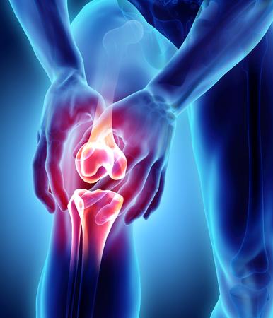 Pijnlijke knie - skelet x-ray, 3D illustratie medisch concept.