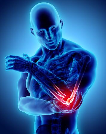 人間の肘の怪我、医療コンセプトの3Dイラスト。