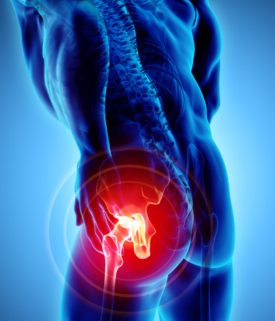 3D illustratie, x-ray van het heup pijnlijke skelet, medisch concept. Stockfoto