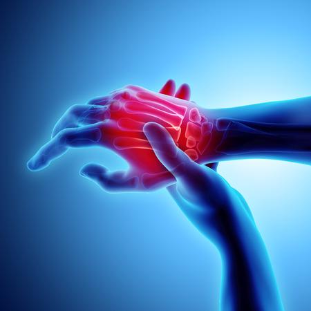3D ilustracja dłoni bolesne - prześwietlenie szkieletu, koncepcja medyczna.