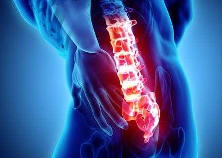 Illustration 3D de la colonne vertébrale sacrée douloureuse, concept médical. Banque d'images