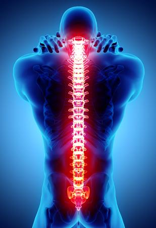 仙骨と子宮頸部痛みを伴う医療コンセプトの3Dイラスト。 写真素材 - 97433686