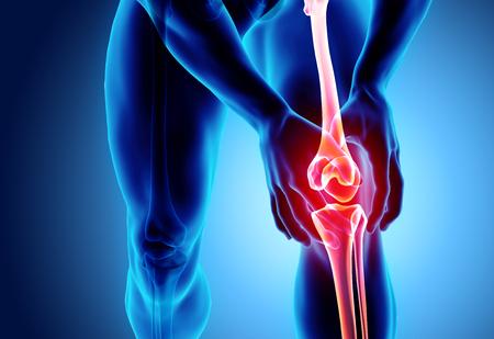 Rodilla dolorosa - esqueleto de rayos x, concepto médico Ilustración 3D. Foto de archivo